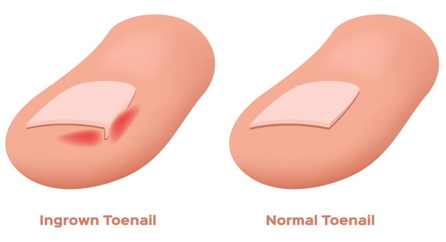Ingrown Toenails and Nail Surgery   Foot Right Podiatry